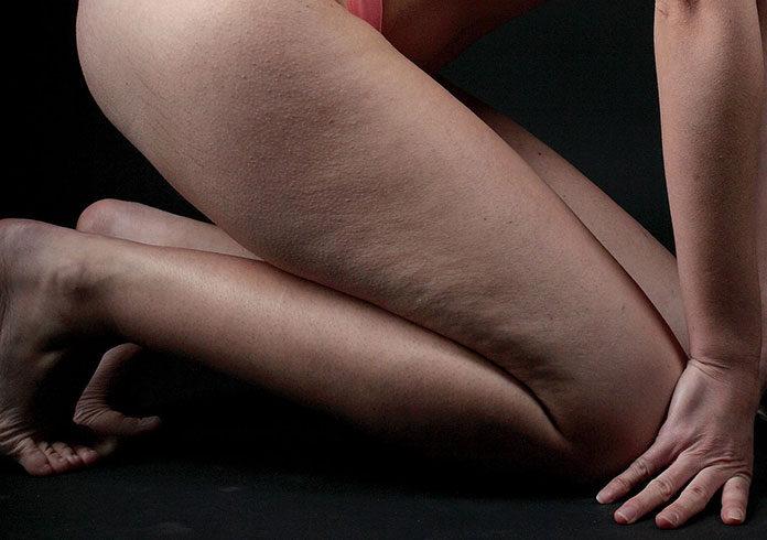 Masażysta na relaks i skuteczną walkę z cellulitem