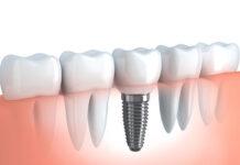 Implanty zębów